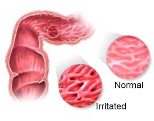 Увага! Заборонені продукти при cиндромі роздратованого кишечника