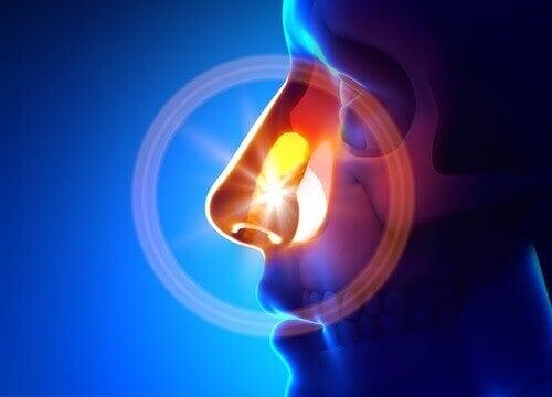 Як за допомогою натуральних засобів вилікувати синусит