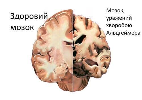 Хвороба Альцгеймера: своєчасне виявлення перших симптомів