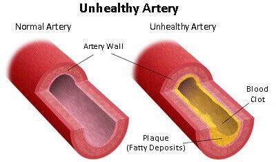 ateroskleros