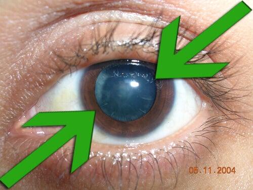Натуральне лікування та профілактика катаракти