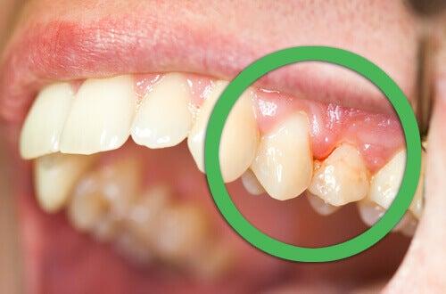 Природні засоби, які лікують кровоточивість ясен і рухливість зубів