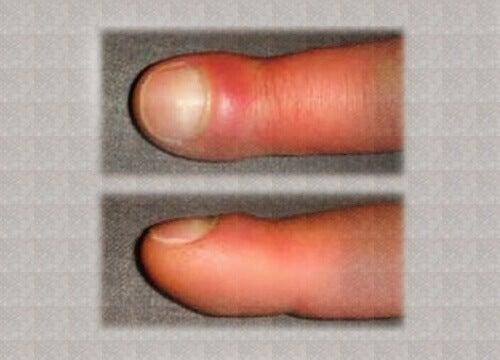 Що спричиняє набряк пальців?