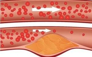 накопичення холестерину в судинній стінці