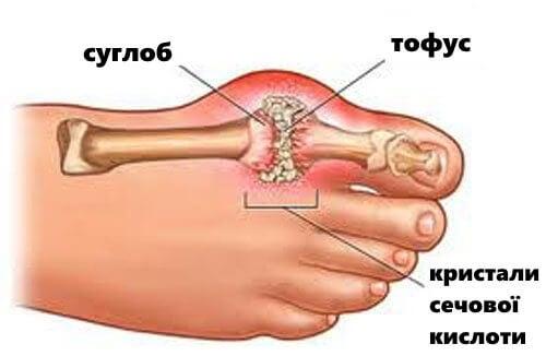 Подагра: симптоми та способи лікування