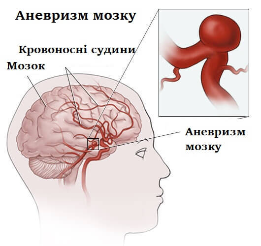 аневризма головного мозку
