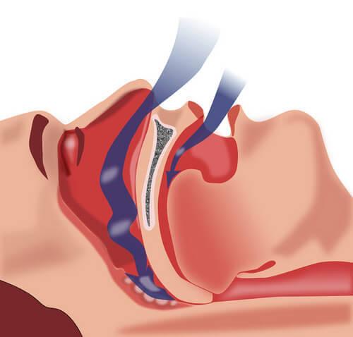 Як боротися з апное під час сну?