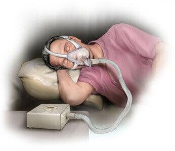 апарат для лікування хропіння та апное сну
