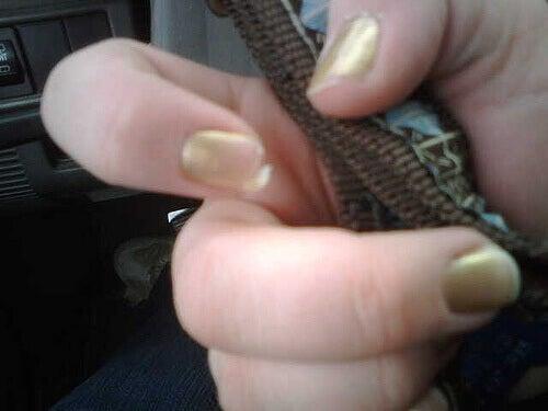 розшаровані нігті