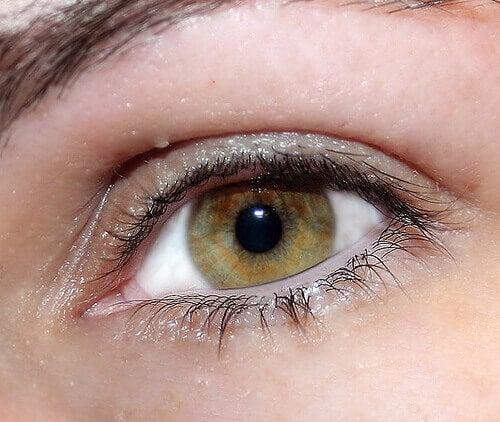 райдужка ока змішаних кольорів