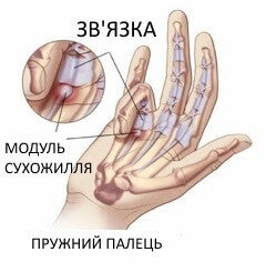 біль у руках