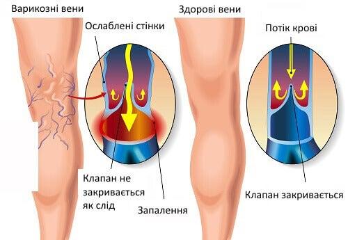 Корисні вправи при варикозному розширенні вен