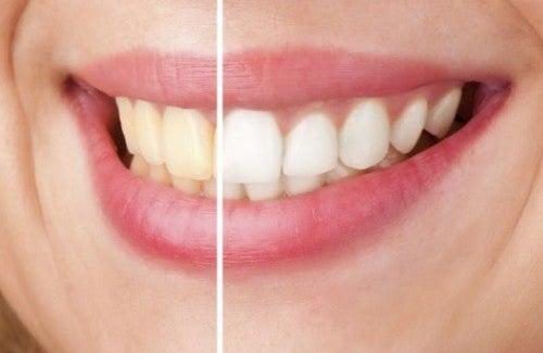Як відбілити зуби в домашніх умовах – Моє здоров я 2de02cc0e9729