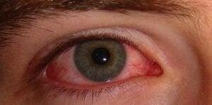 Почервоніння очей: причини і прості засоби лікування