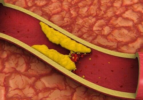 Соки, які знижують рівень холестерину