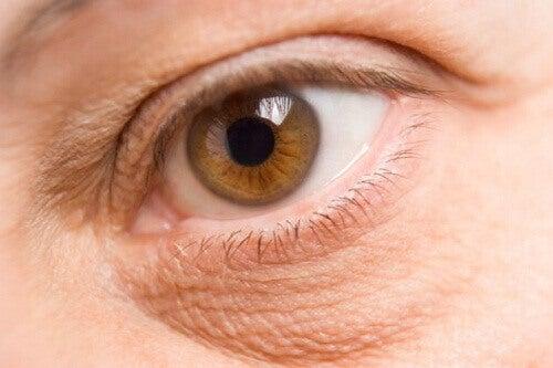 Як освітлити та зменшити мішки під очима