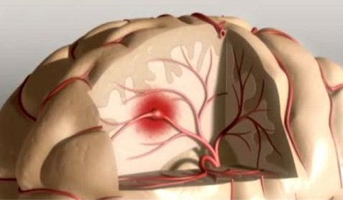 mozkoviy-krovoobig
