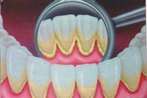 Як усунути зубний наліт природним способом
