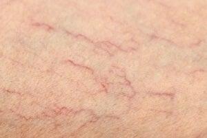 Варикозне розширення вен на ногах: засоби лікування