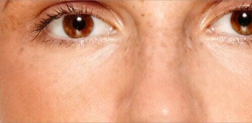 Як зменшити пігментні плями на обличчі та позбутися їх