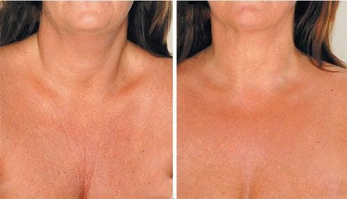 Засоби для зменшення зморщок на шиї