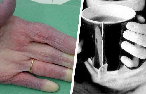 Холодні руки: причини, які повинен знати кожен