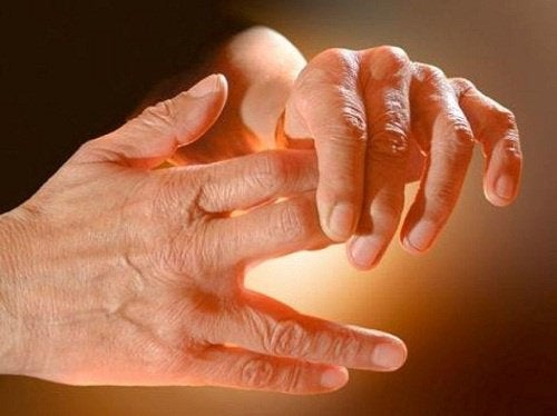 Чому виникають поколювання в руках і ногах