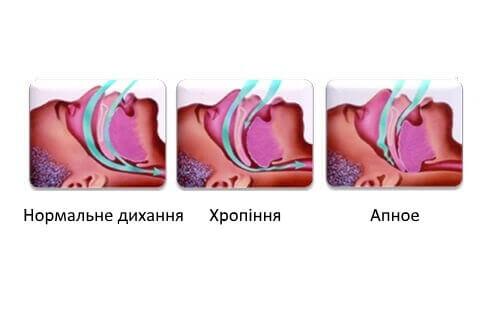 Chropinnia (1)