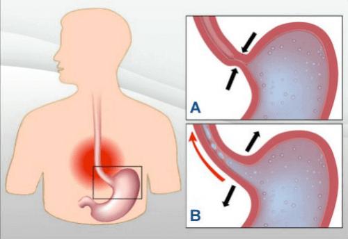 Правильна дієта для людей з рефлюксною хворобою