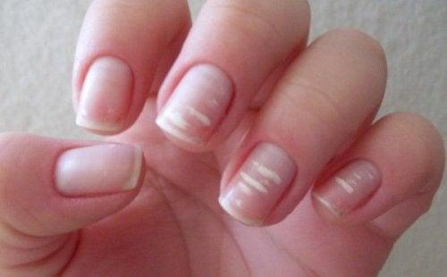 білі цятки на нігтях