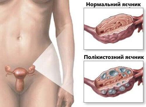 Народні методи лікування синдрому полікістозних яєчників