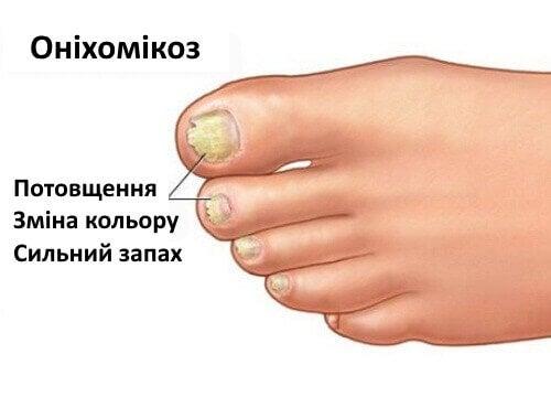 Оніхомікоз: грибок нігтів