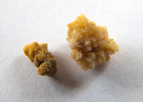 Як уникнути появи каменів у нирках