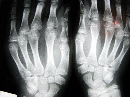 osteoartryt