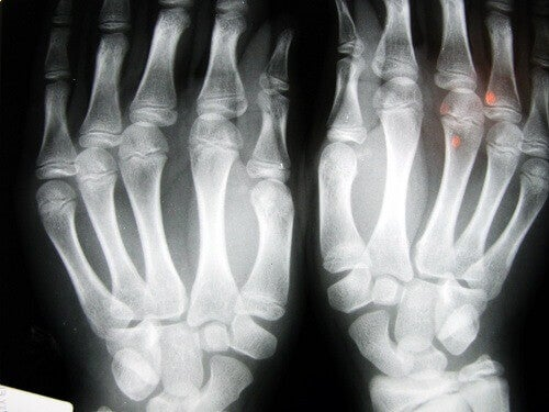 рентгенограма обох кистей