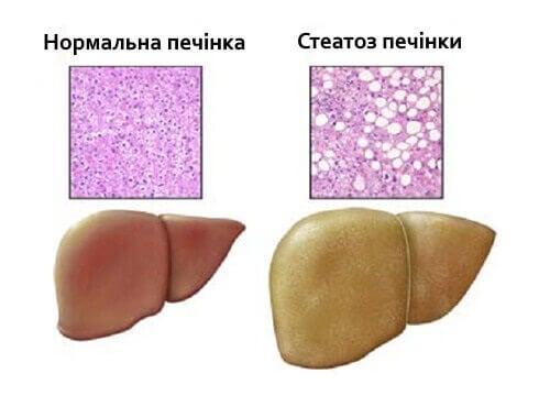 нормальна печінкп та стеатоз печінки