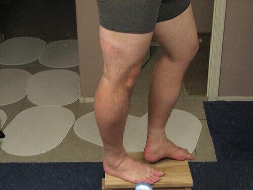 біль по ходу сідничного нерва під час ходьби