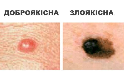 rak2_ukr
