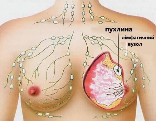 фото жінок раком
