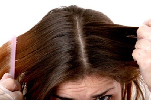 яблучний оцет зменшує появу лупи та укріплює волосся