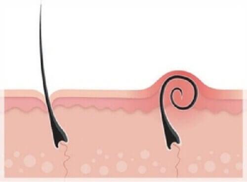 Лікування та профілактика врослого волосся