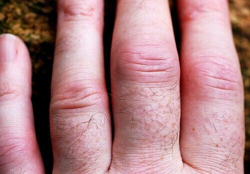 набряк суглобів пальців кисті при ревматоїдному артриті
