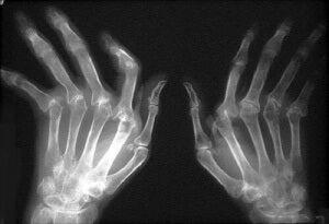 Як лікувати ревматоїдний артрит