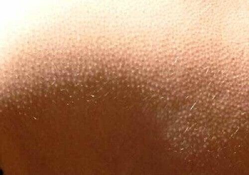 гусяча шкіра