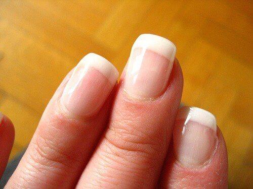 знебарвлення на нігтях