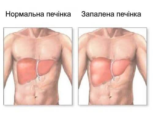 Запалення печінки. Причини та симптоми хвороби