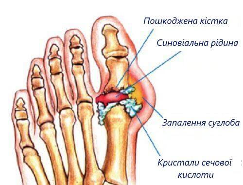 podahra1 (2)