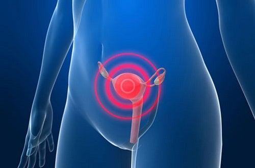 Попереджувальні симптоми раку шийки матки