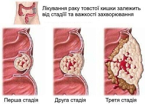 Що потрібно знати про рак товстої кишки