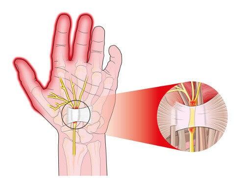 5 способів полегшити біль при тунельному синдромі